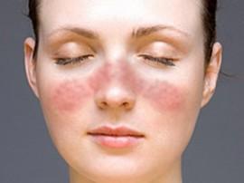 аллергия при псориазе