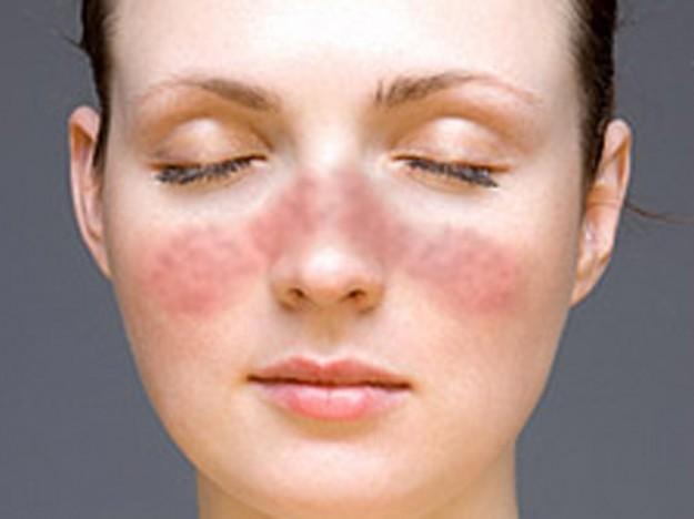 отличие аллергии