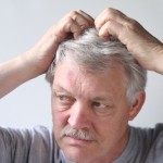 Псориаз на голове. Лечение