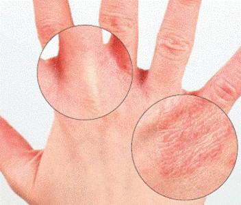 kak-proyavlyaet-sebya-psoriazniy-artrit