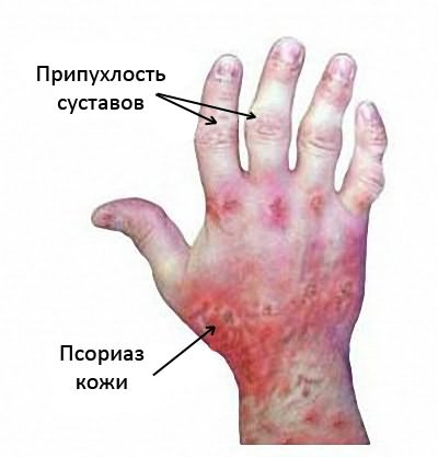artrit psorias 1