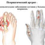 Псориатический артрит у взрослых: симптомы и лечение