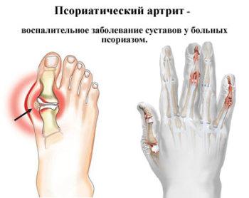 Артрит суставов заболевание тугость суставов